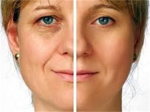 Lifting facial sin cirugía Kobido
